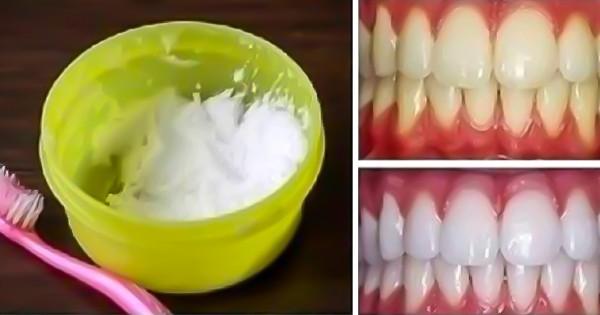 kak-otbelit-zuby-v-domashnix-usloviyax-za-3-minuty-100j-rezultat-1