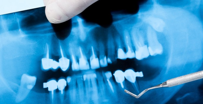 bigstock-x-ray-photo-of-teeth-dental-e-64462231-682x351