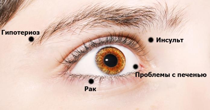 eye-health-fi-696x365