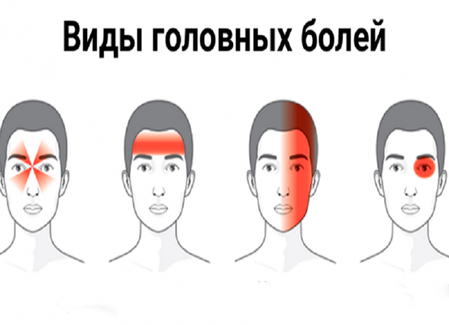 golovnaya-bol